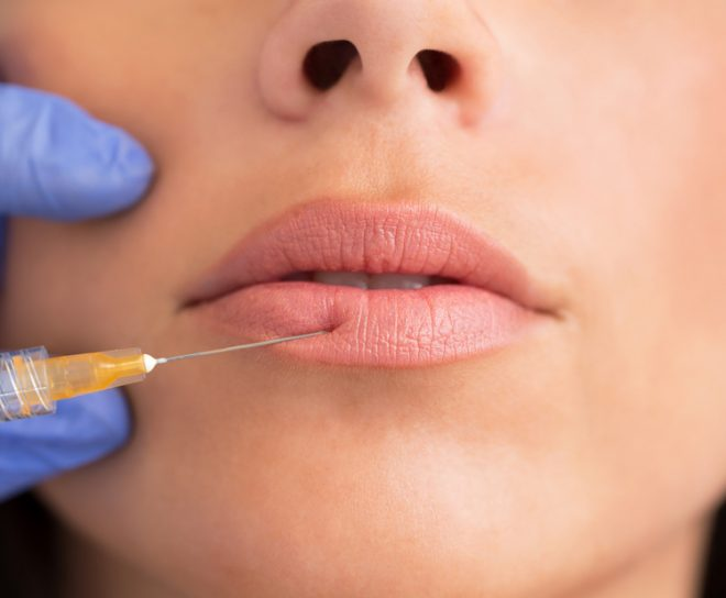 main-woman-getting-lip-injections-fillers