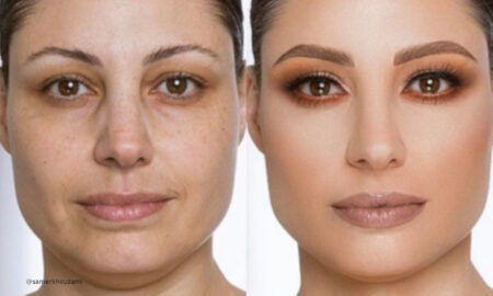 Beauty Transformations By Samer Khouzami