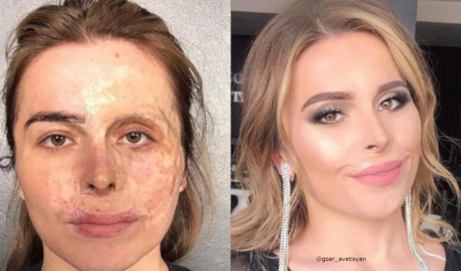 Beauty Transformations Severe Skin Conditions Power Of Makeup