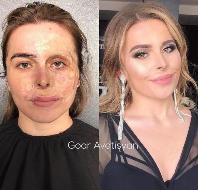 beauty transformations severe skin conditions power of makeup 1