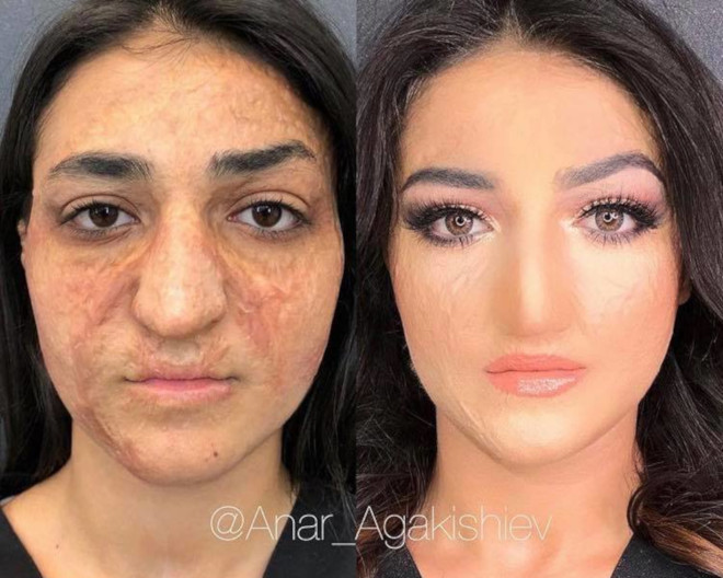beauty transformations severe skin conditions power of makeup 8