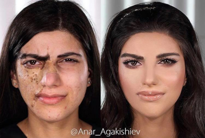 beauty transformations severe skin conditions power of makeup 9