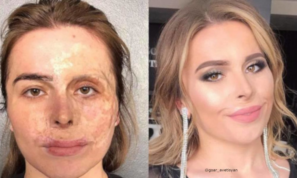 beauty-transformations-severe-skin-conditions-power-of-makeup-1-1-1000×600-1