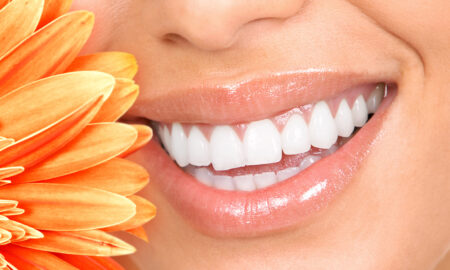 tips-to-maintain-a-fabulous-smile-woman-with-beautiful-white-teeth-main-image