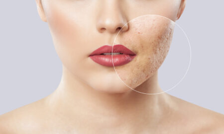 deal-with-acne-scars-how-to-woman-with-acne-scars-how-to-deal-with-acne