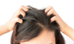 how-to-fade-your-bad-at-home-dye-job-woman-touching-scalp