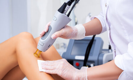 guide-to-smooth-skin-laser-hair-removal